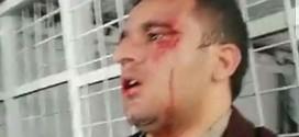 اعتداء بالضرب المبرح يطال مراسل فضائية كوردسات في زاخو