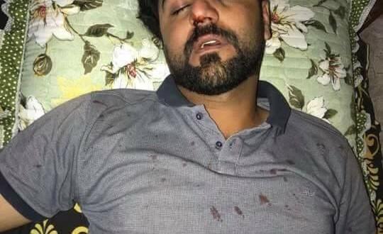 مراسل NRT في بابل يتعرض لاعتداء بالضرب المبرح على يد مجهولين يستقلون مركبة رباعية الدفع